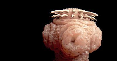 Bandwürmer sind wirklich gruselig