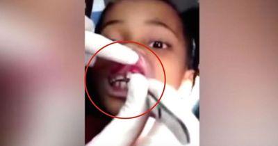 Dieses Mädchen hat 15 Tiere in ihrem Mund